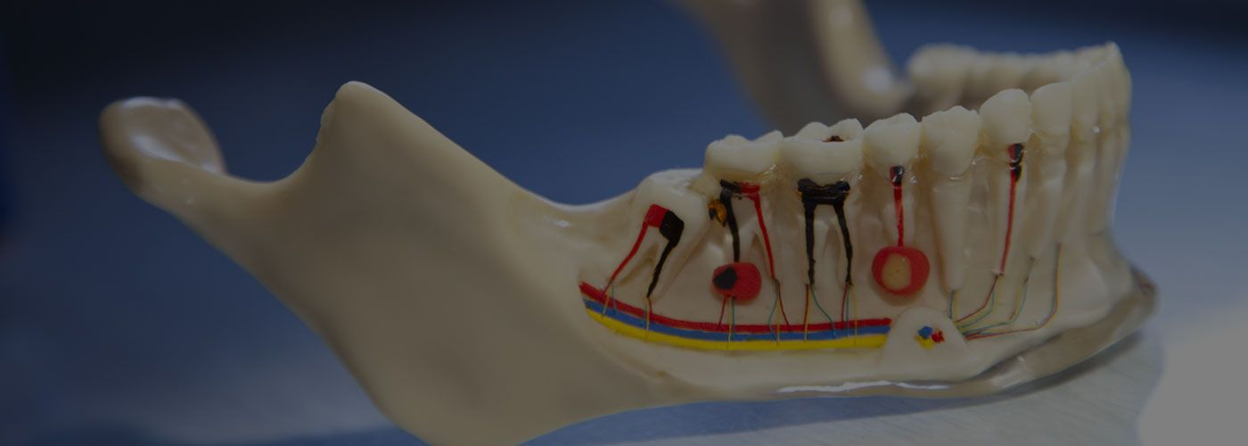 Root Canal Treatment / Endodontics